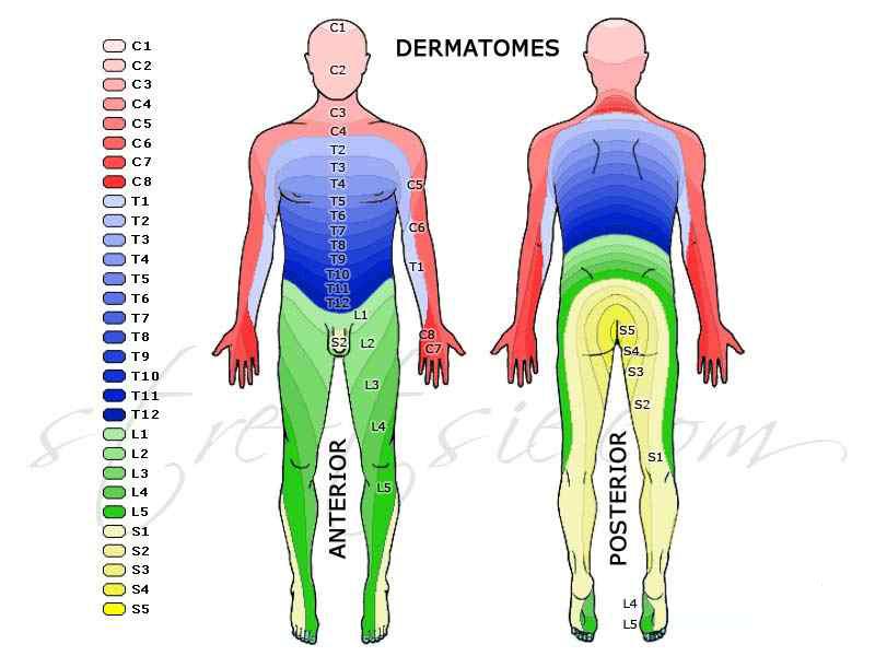 Siyatik bel, bacak ağrıları, boyun, kol ağrıları, el-ayak uyuşmaları ile ilgili görsel sonucu