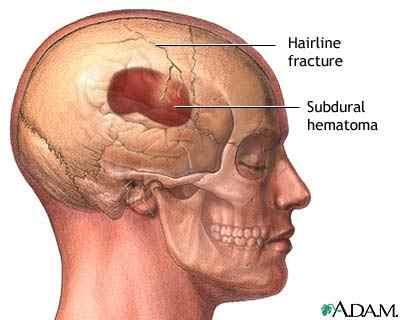 decompressive craniectomy adem